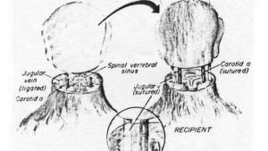 transplante-cabeca-1